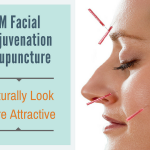 tcm facial rejuvenation acupuncture naturally look more attractive