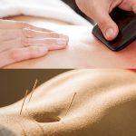 Acupuncture & Gua Sha Treatment Singapore