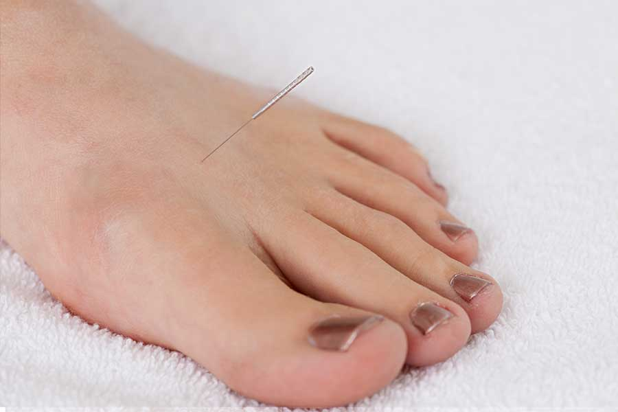 acupuncture gout foot
