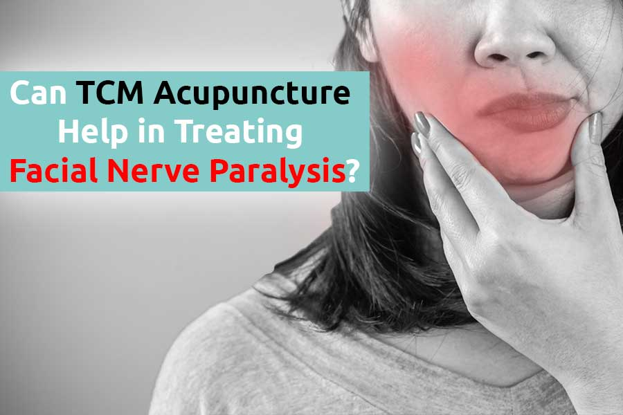 Can TCM Acupuncture Help in Treating Facial Nerve Paralysis