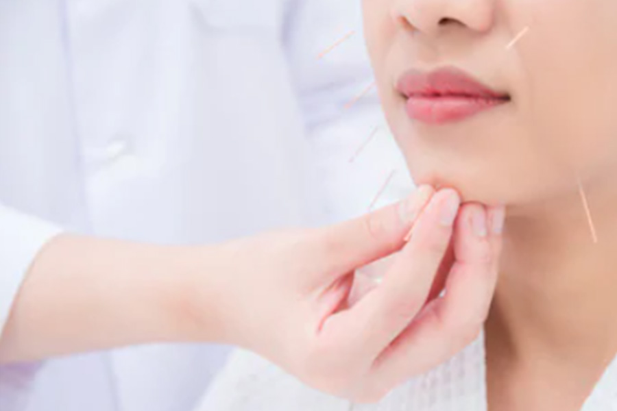 how does tcm acupuncture help in treating facial nerve paralysis