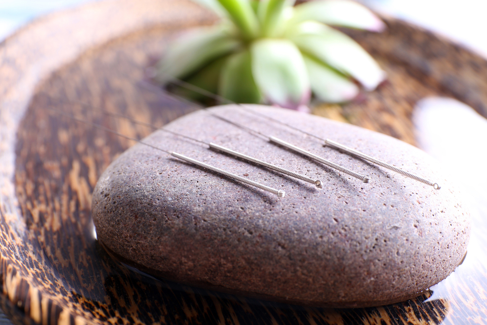 shi-style weight loss acupuncture